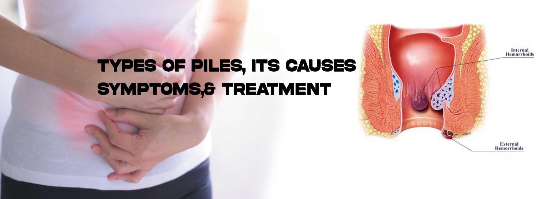 types of piles